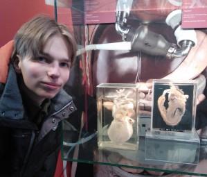 Altijd even kijken in de hal van het AZU: expositie met echte harten